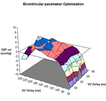 optimising pacemakers